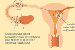 Méhen kívüli terhesség utáni fájdalom